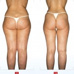 Endermologie® & Lipomassage™ LPG Before After 2 14 sessions 150x150