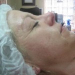 RégimA Anti ageing and scarring client before right side 150x150