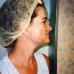 RégimA PIGMENTATION PHOTO 1 150x150